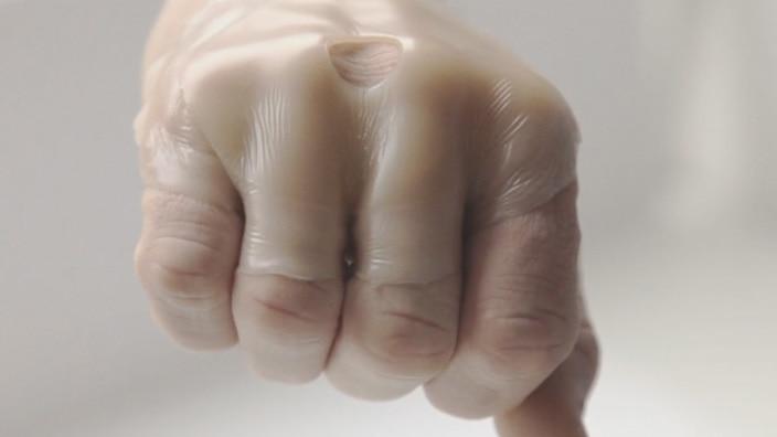 SenSura Mio per stomia ha un adesivo elastico che aderisce alle forme del corpo