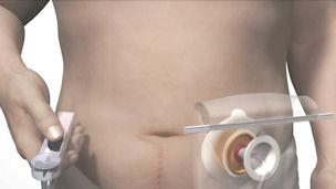 Come effettuare l'irrigazione della colostomia