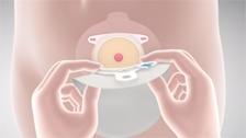 Applicazione del sistema due pezzi per stomia SenSura Mio Click Coloplast